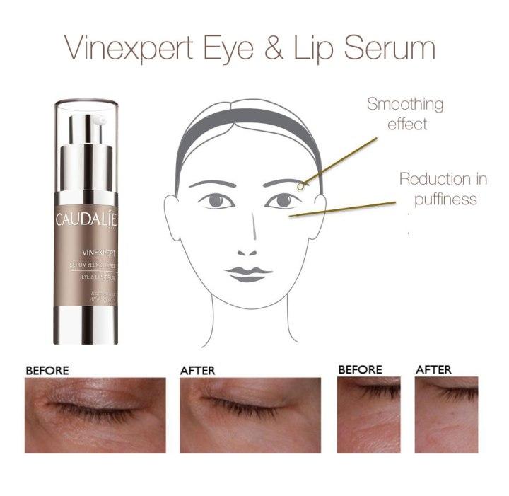 Vinexpert Eye & Lip Serum benefits